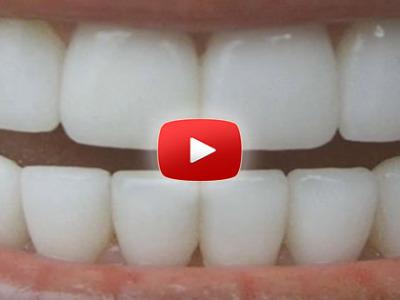 Ako si prírodne vybieliť zuby za 3 minúty