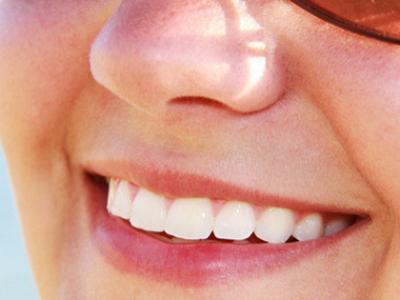 Ako získať žiarivý úsmev
